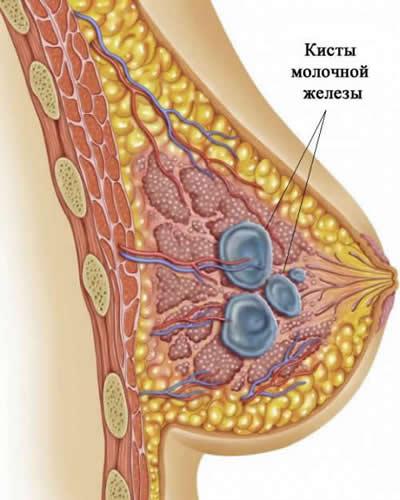 Множественные кисты молочной железы