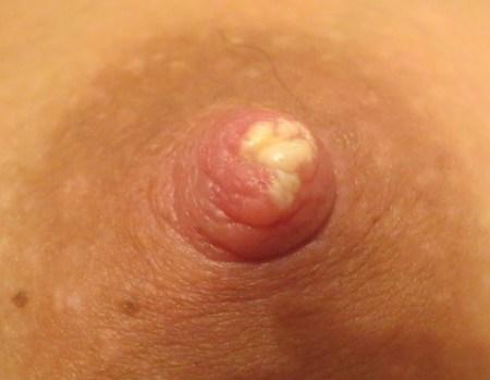 Молочница может стать причиной отказа от грудного вскармливания