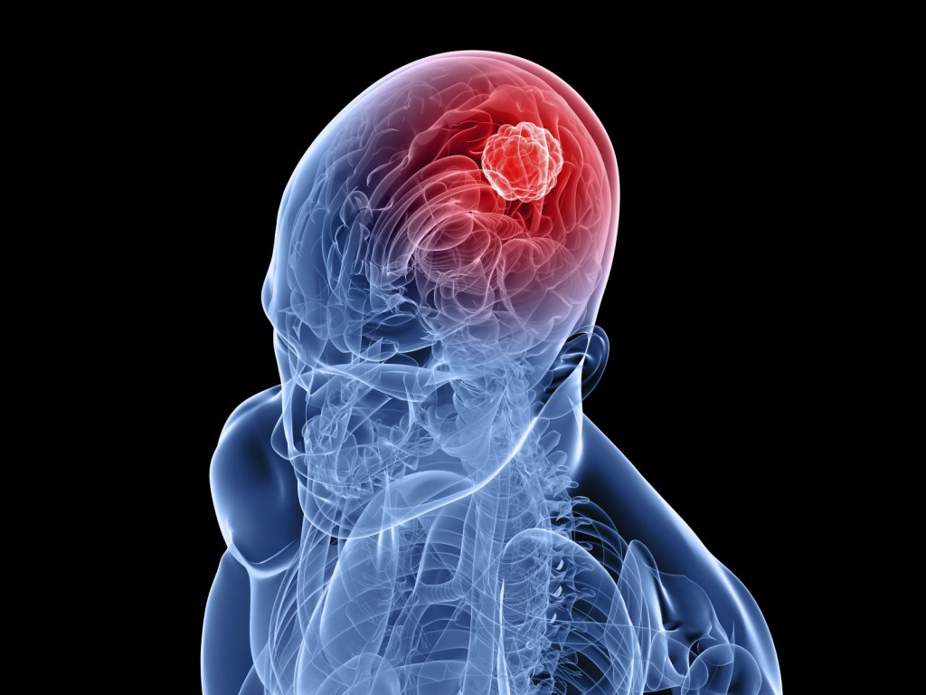 Одной из причин появления нарушений может стать мозговая опухоль