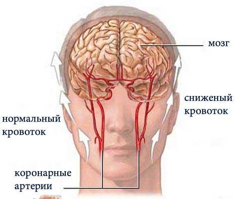 Причина заболевания кроется в недостаточном кровоснабжении мозга