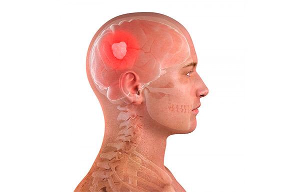 Опухоли головного мозга могут повлечь за собой нарушения функции щитовидной железы