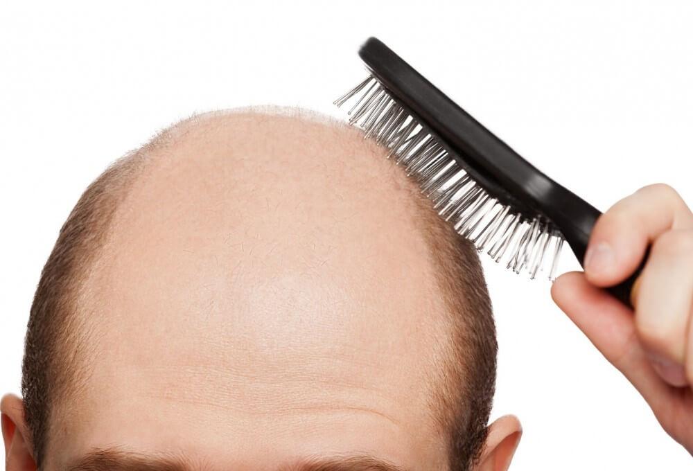 При гипотиреозе происходит резкая потеря волос