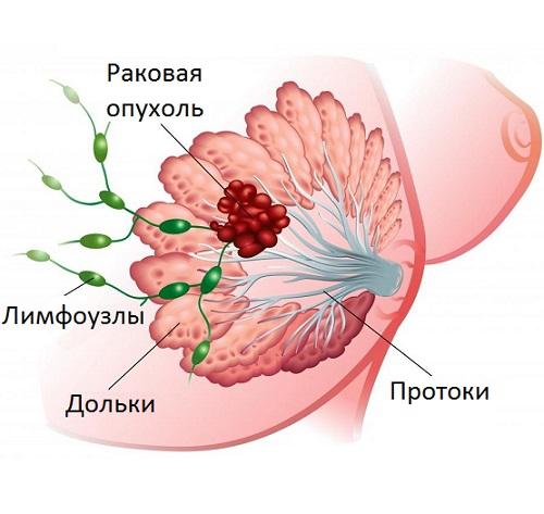 При болезни Минца может развиться рак
