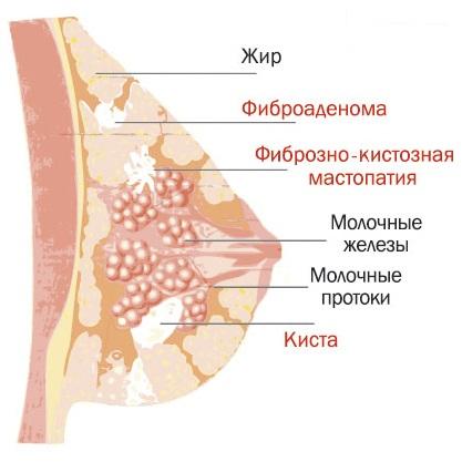 Диффузный фиброзный фам