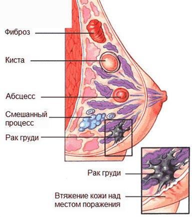 Образования в груди