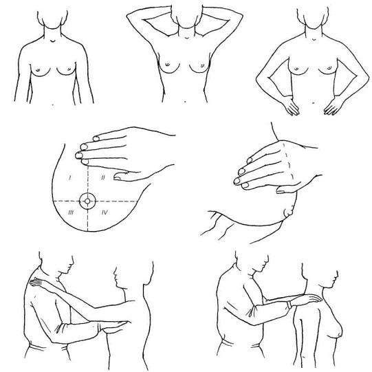 Для выявления уплотнений необходимо проводить обследование груди