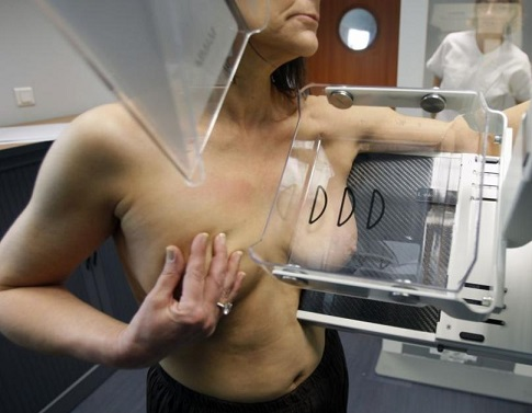 Выявление опухоли с помощью маммографии