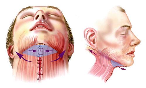 Патологии щитовидки могут возникнуть в результате проведения операции на шее