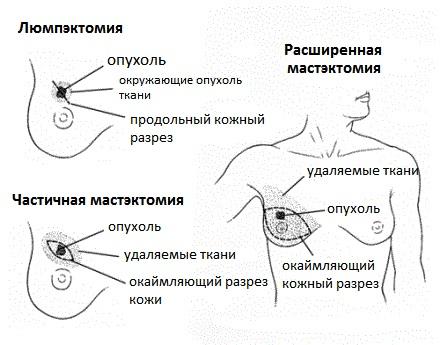Варианты хирургического лечения рака
