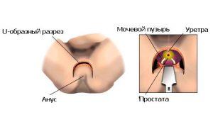 Для удаления простаты может выполняться открытая операция
