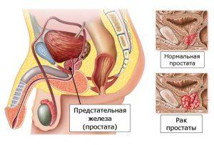 Щупальца член простата