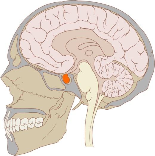 Недостаточная выработка гормонов щитовидки может быть связана с развитием опухоли в гипофизе
