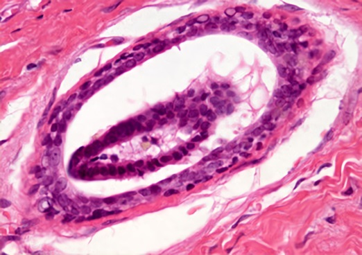 Фиброаденома является узелковой формой мастопатии