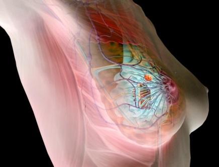 Сильные боли могут быть вызваны образованием опухоли