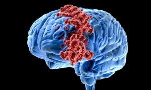 Опухоли головного мозга провоцируют  изменения количества вырабатываемых гормонов