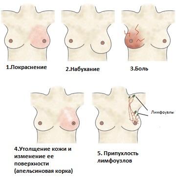 Основные симптомы мастита