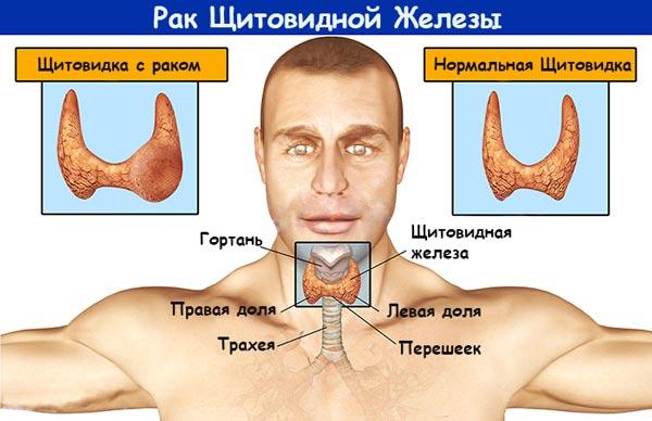 При обнаружении на ранней стадии рак щитовидной железы поддается лечению