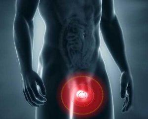 Аденома простаты вызывает острую задержку мочи