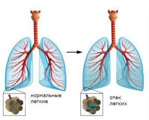 При гипотиреозе наблюдается отек легких