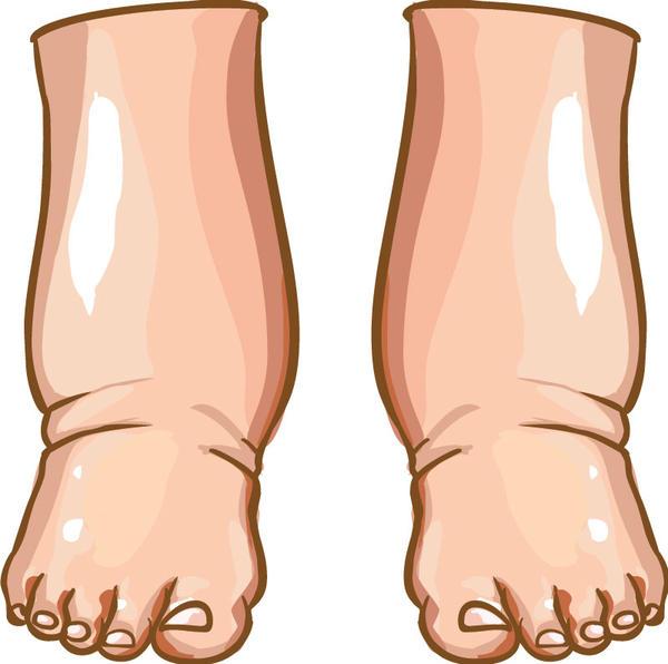 У пациентов с аутоиммунным тиреоидитом отекают ноги