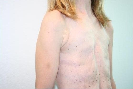 Врожденная патология - отсутствие груди
