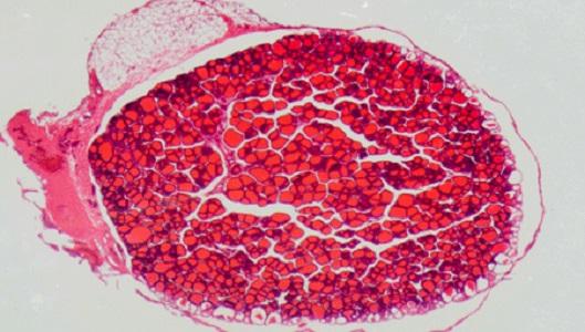 Папиллярная карцинома щитовидной железы редко дает метастазы