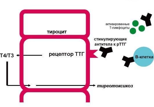 Токсическая разновидность зоба развивается в случае нарушений в работе иммунной системы