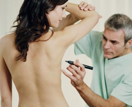 При сильной асимметрии груди применяется пластическая хирургия