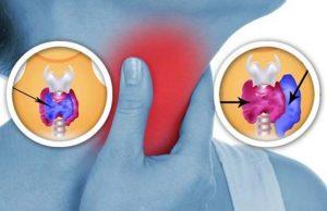 Субтотальную резекцию проводят при наличии опухолей щитовидки