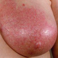 Мастит вызывает покраснение груди