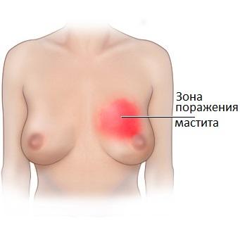 Зона покраснения груди