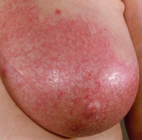 аллергия от крема чем лечить
