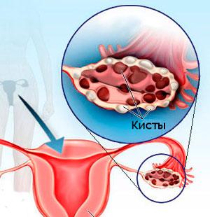 Больные поликистозом яичников находятся в группе риска