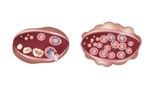 Поликистоз яичников часто является сопутствующим заболеванием