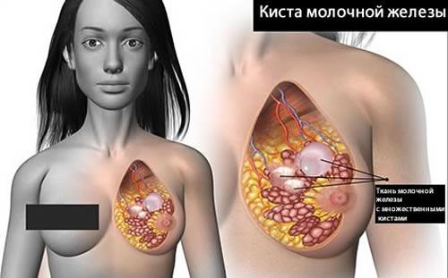 Поликистоз молочной железы вызывает жжение и дискомфорт