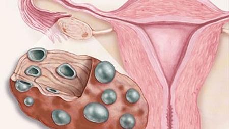 Макромастия часто сопровождается поликистозом