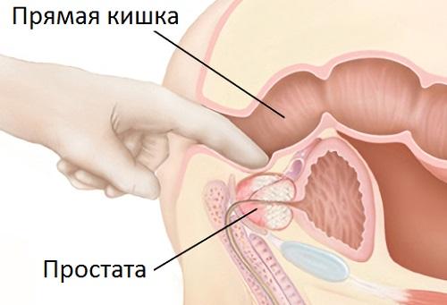 Массаж простаты устраняет застой в органах малого таза