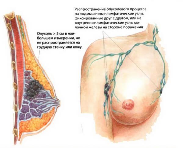 При 3 стадии в груди можно нащупать уплотнение