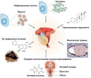 Простатит вызывают инфекции и бактерии