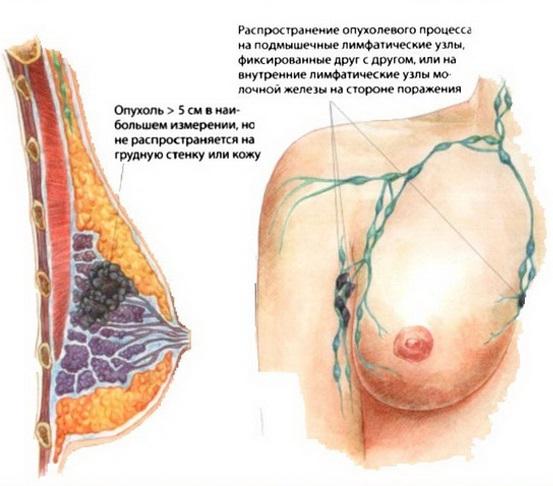 Как развивается рак груди