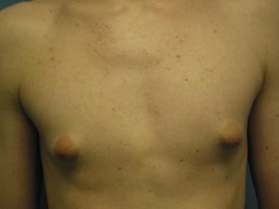 Припухлость груди - один из первых симптомов