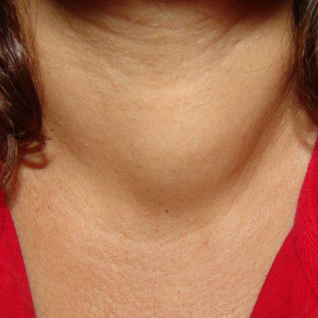 У пациенток с гиперфункцией щитовидки наблюдается припухлость в области шеи