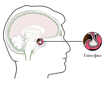 Микроаденома гипофиза у мужчин