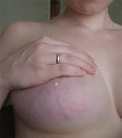 Покраснения на груди