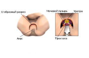 Удаление простаты проводится методом промежностной простатэктомии