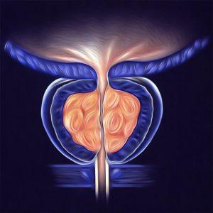 Увеличение простаты в размерах свидетельствует о развитии заболевания