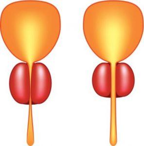 Простатит - это бактериальное воспаление предстательной железы