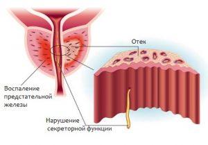 Простатит может появиться у мужчины в любом возрасте