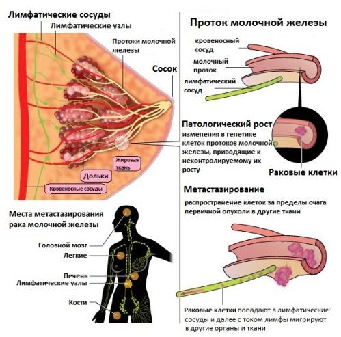 При протоковом раке груди очень низкий процент на выживание