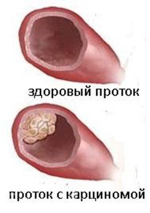 Протоковый рак можно распознать только с помощью специального обследования